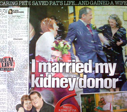 Kidney Donor Image